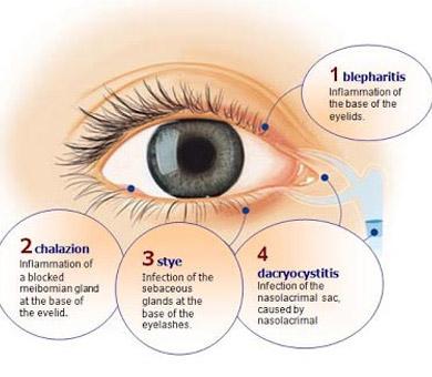 Delaware Eye Clinic| Blepharitis